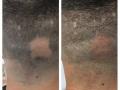 MHP alopecia