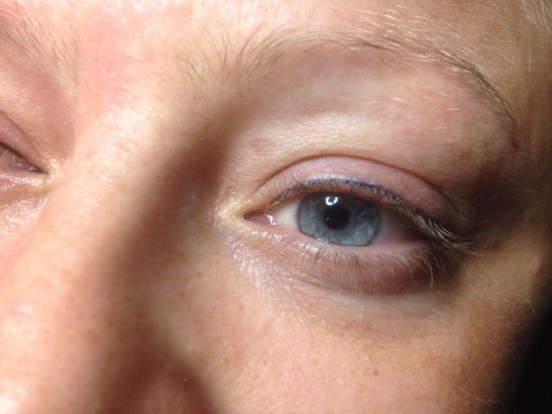 allergische reactie make up